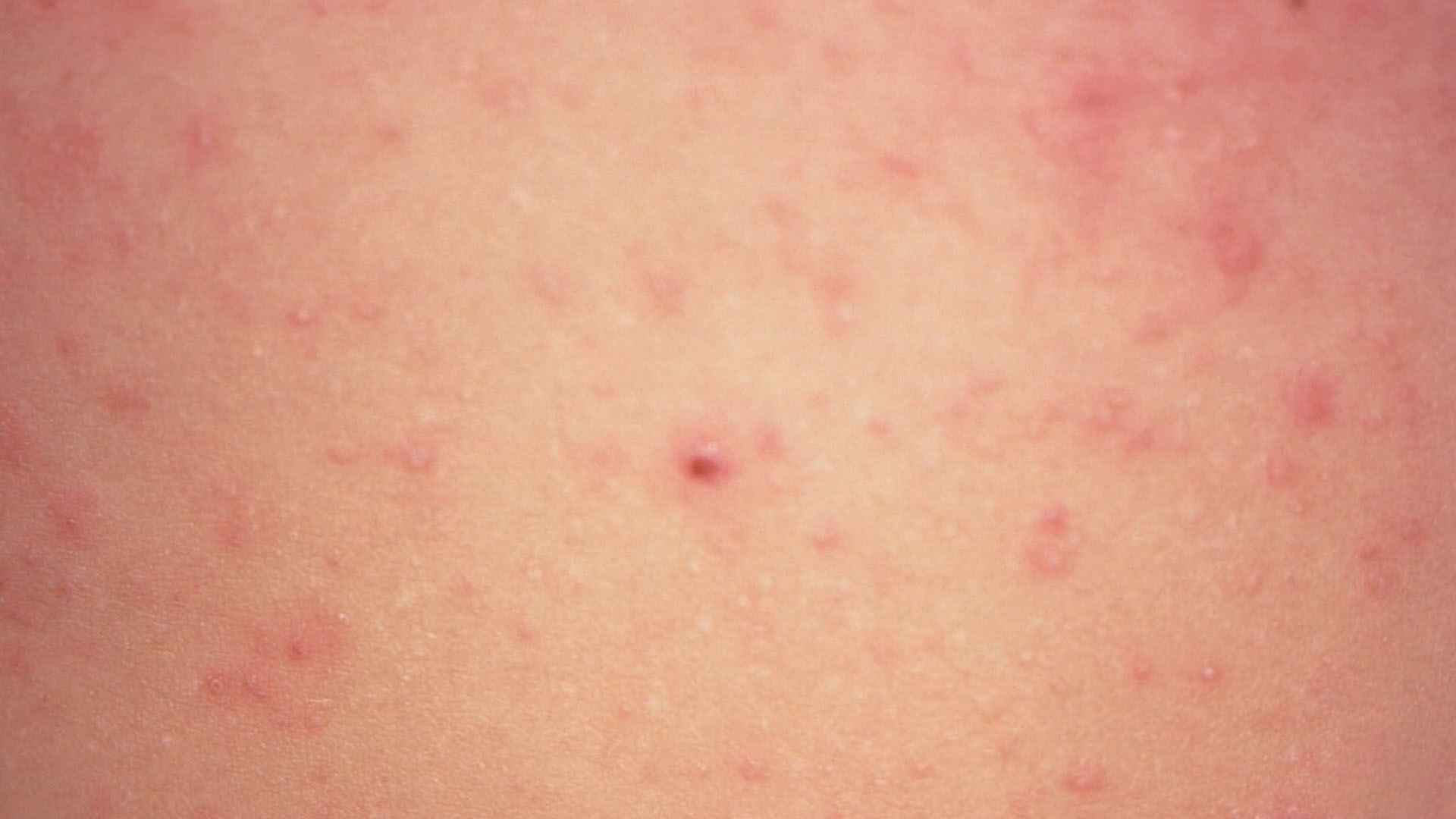 measles - photo #23